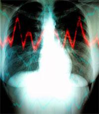 xray-heart-200.jpg